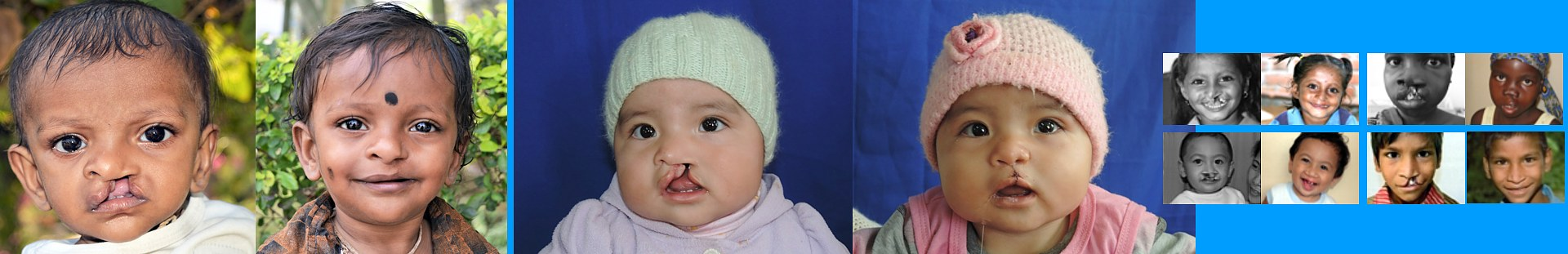 Cleft Kinderhilfe